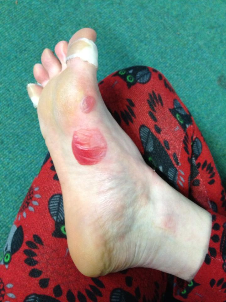 Why my little toe nail came off – Wild Ginger Films