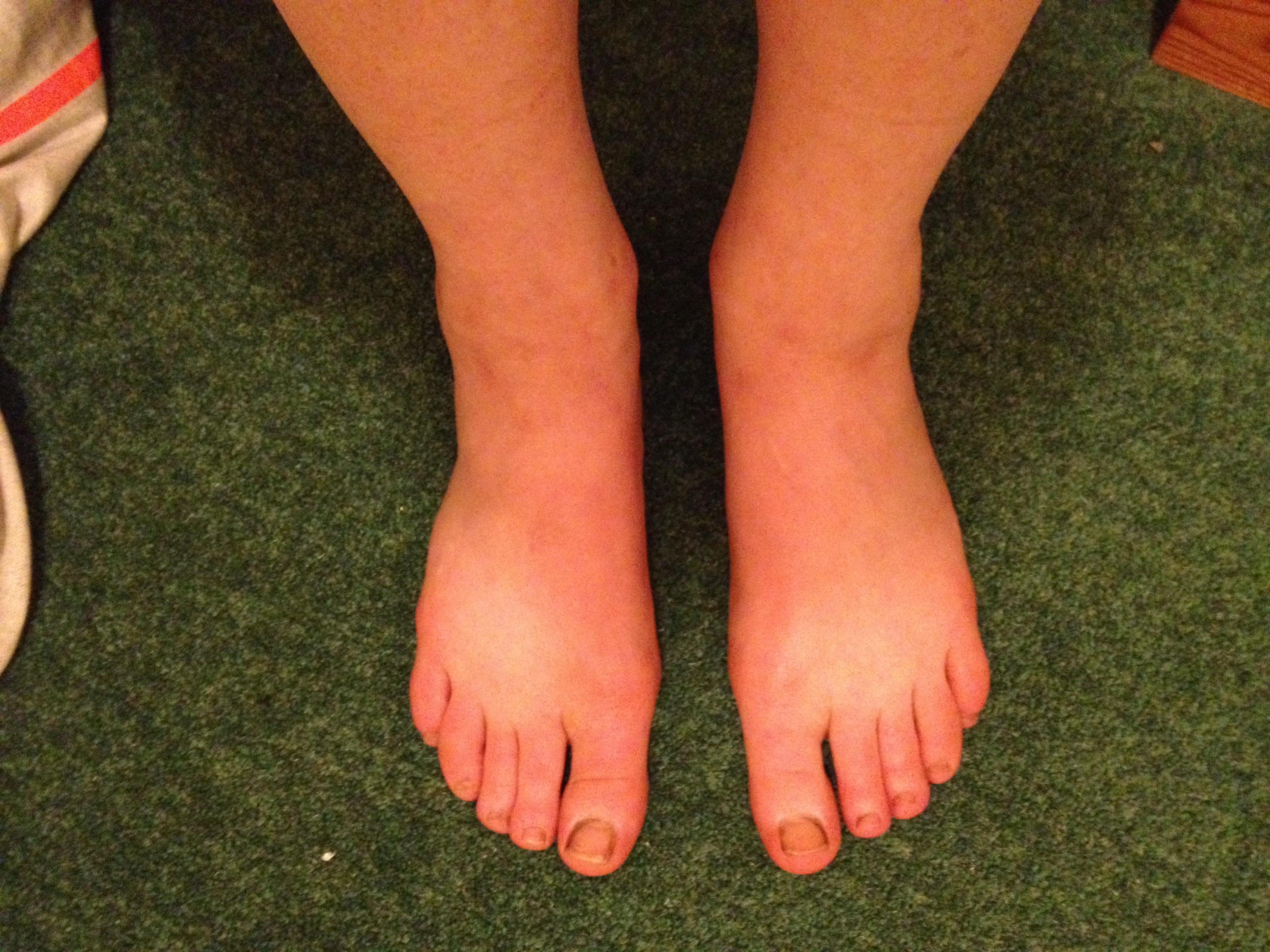 IMG_3905 BG swollen feet after.JPG